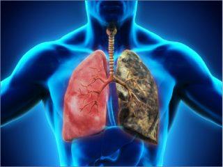 Какие бывают болезни легких: лечение и профилактика