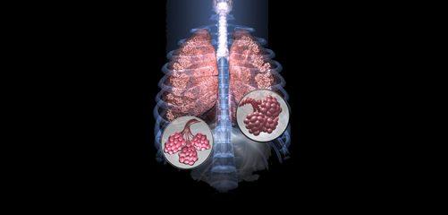 Чем опасна абсцедирующая пневмония
