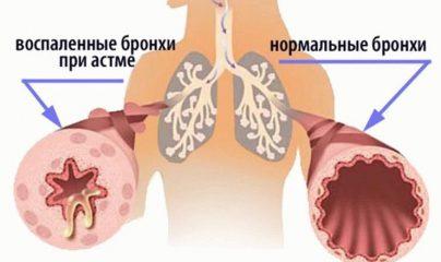Различные классификации бронхиальной астмы