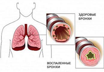 Что такое бронхообструктивный синдром?
