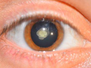 Почему и от чего бывает глаукома