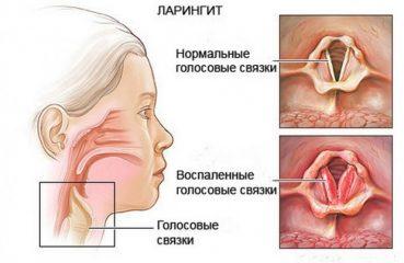 Из-за чего возникает вирусный ларингит и каковы его симптомы