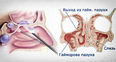 Почему образуется в носу киста и чем опасна эта патология