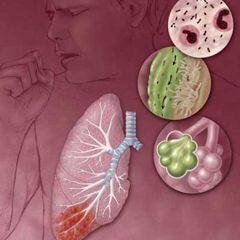 Что такое пневмоцистная пневмония?