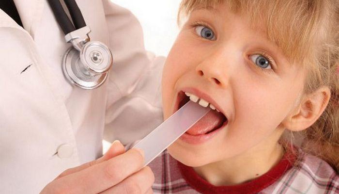 стоматит в горле у ребенка