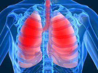 Что такое пневмония нозокомиальная?