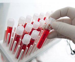 Расшифровка анализа на онкомаркер NSE