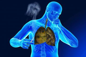Как и чем лечить бронхит курильщика