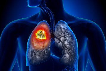 Инфарктная пневмония или инфаркт легкого