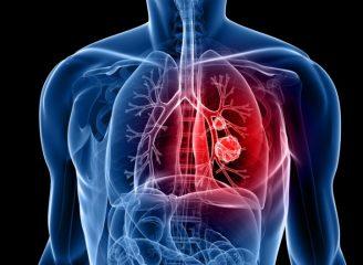 Можно ли вылечить рак легких?