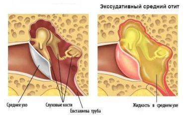 Экссудативная форма отита у взрослых и детей: симптомы и лечение