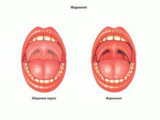 Как происходит лечение субатрофического фарингита?