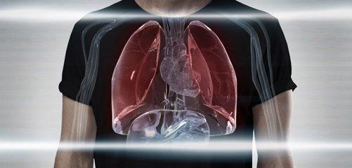 Плоскоклеточный рак легкого - причины, симптомы, диагностика и прогноз