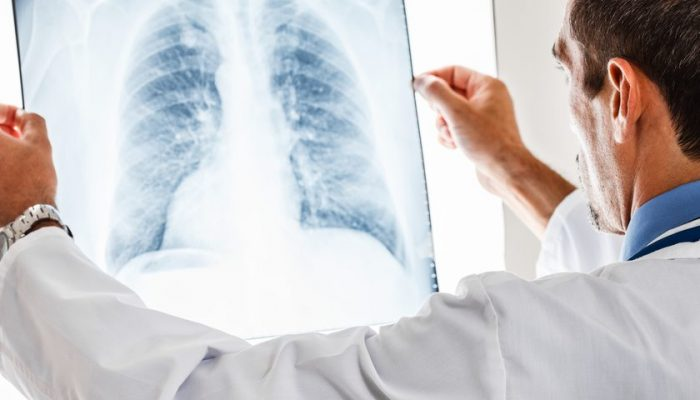 Дырка в легком при туберкулезе