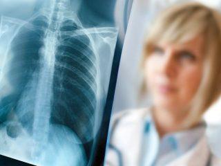 Эффективное лечение туберкулеза