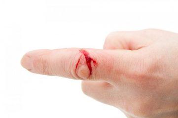 Как быстро остановить кровь?