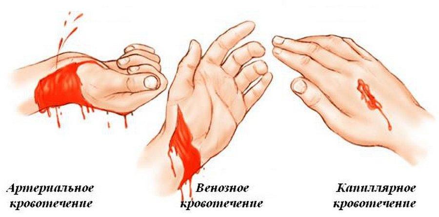 Кровь: как остановить быстро в домашних условиях?
