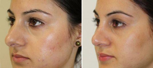 Убрать горбинку на носу: упражнения, операция, макияж