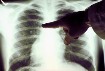 Рак легких и флюорография: признаки на снимке