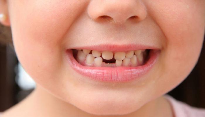 Ранние зубы у грудничков хорошо или плохо