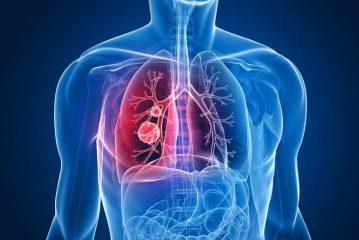 Аденокарцинома легких (Железистый рак)