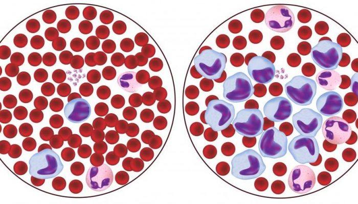 Лимфоцитоз в анализе крови