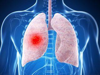 Как отличить туберкулез от рака легких?
