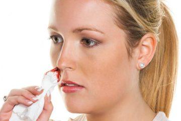 Кровь из носа и головная боль: причины