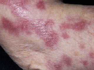 Симптомы, лечение и профилактика туберкулеза кожи