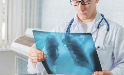 КТ и МРТ при туберкулезе легких