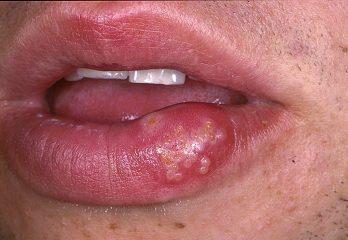 Через сколько дней проходит герпес на губах?