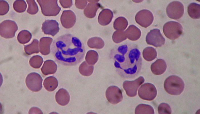 Анализ крови много сегментоядерных