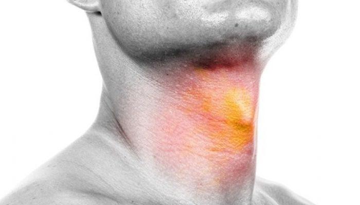 Ощущение кислоты в горле