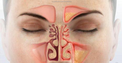 Назальная ликворея: симптомы и лечение