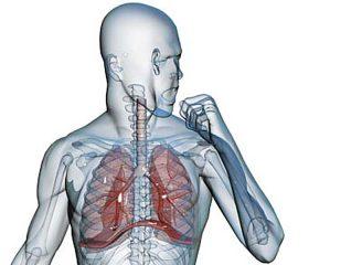 Долевая пневмония: симптомы и лечение