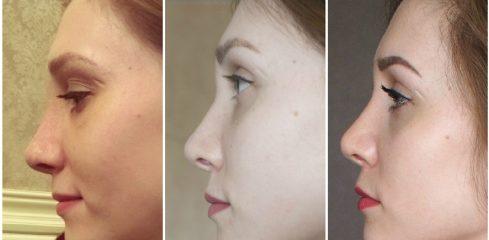 Как снять отек носа после операции?