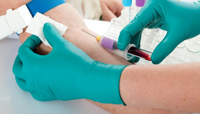 Биохимический анализ крови при онкологических заболеваниях