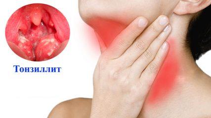 Симптомы различных форм ангины