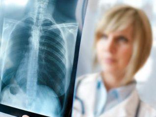 Милиарный туберкулез: диагностика, симптомы и лечение