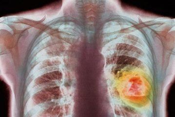 Рак легкого немелкоклеточный: симптомы и лечение
