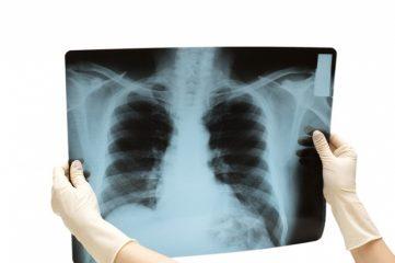 Что такое рентгенография?