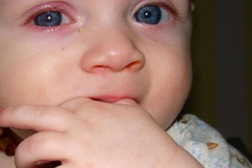 Слезоточивость и краснота в глазах у детей