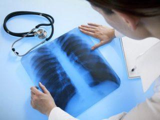 Что можно увидеть на рентгене грудной клетки (ОГК)?