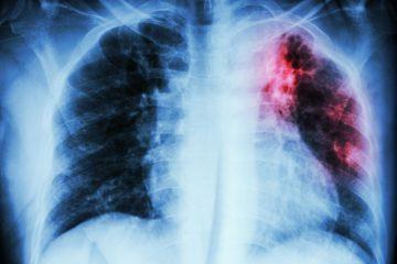 Основные клинические формы туберкулеза