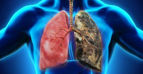 Диссеминированный туберкулез легких: фаза инфильтрации и распада