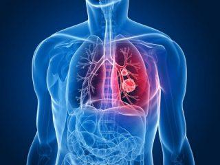 Метастазы в лимфоузлах, печени и легких при раке почки