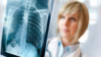 Лучевая диагностика заболеваний легких