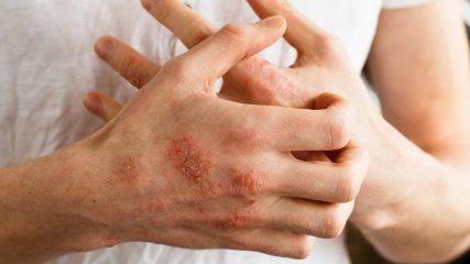 Атопический дерматит и бронхиальная астма
