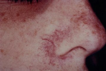На носу видны капилляры: что делать?