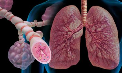 Эмфизема легких при бронхиальной астме